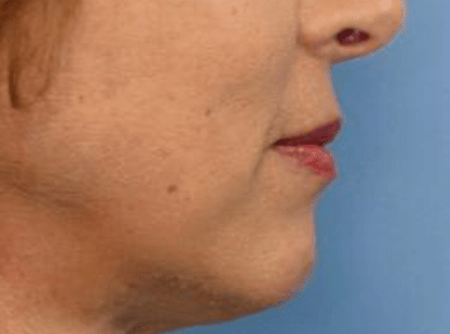 After Chin Augmentation