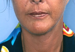 After Facelift Surgery