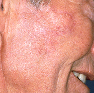After Skin cancer-reconstruction