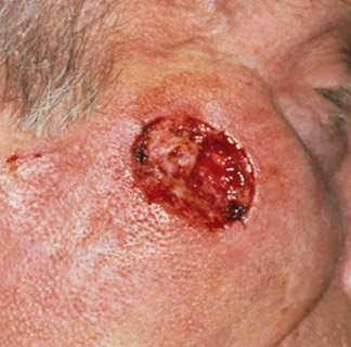 Before Skin cancer-reconstruction
