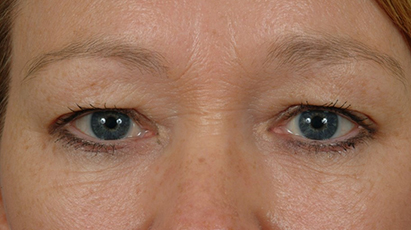 Before Blepharoplasty (Eyelid Surgery)