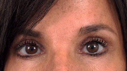 After Blepharoplasty (Eyelid Surgery)